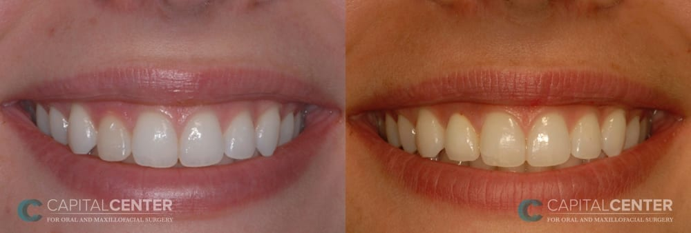 Right lateral incisor replaced_CapitalCenterfororalandoralmaxillofacialsurgery_Patient1_front