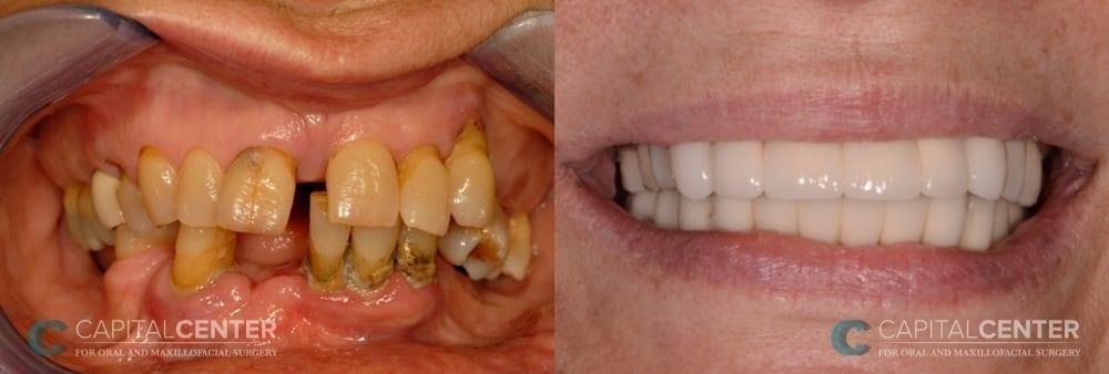 Upper and lower jaw reconstruction_CapitalCenterfororalandoralmaxillofacialsurgery_Patient3_front