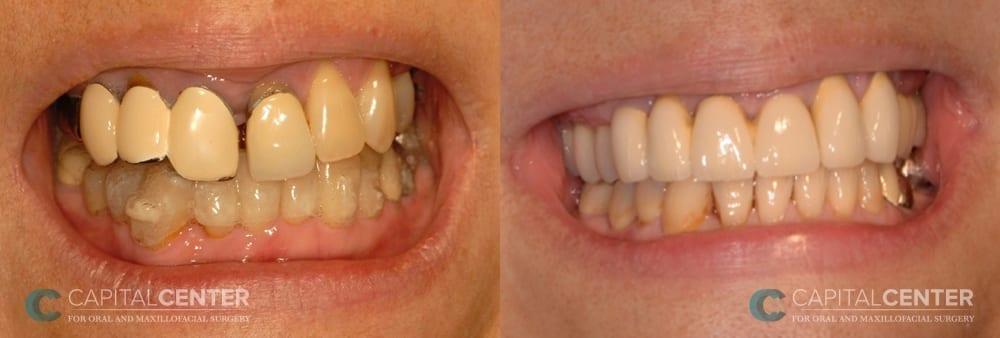 Upper jaw reconstruction_CapitalCenterfororalandoralmaxillofacialsurgery_Patient2_front