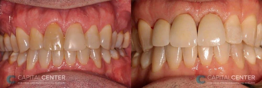 front teeth replaced_CapitalCenterfororalandoralmaxillofacialsurgery_Patient4_front